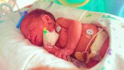 NICU Baby Fankie 1